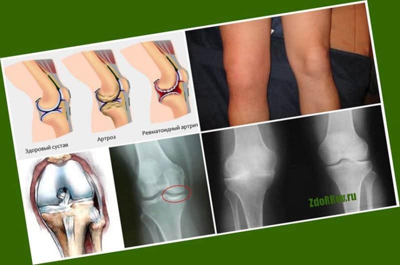 Какие изменения происходит, если не лечить сустав