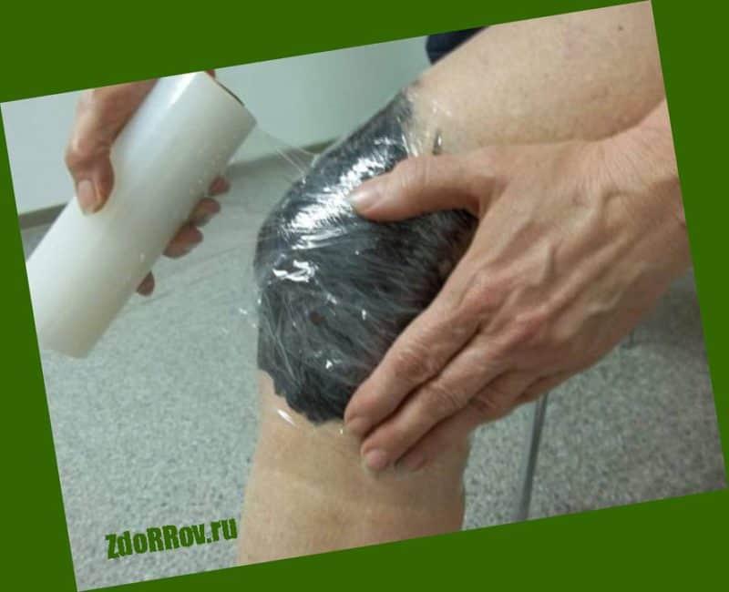 Глинолечение и солевые ванны для лечения суставов