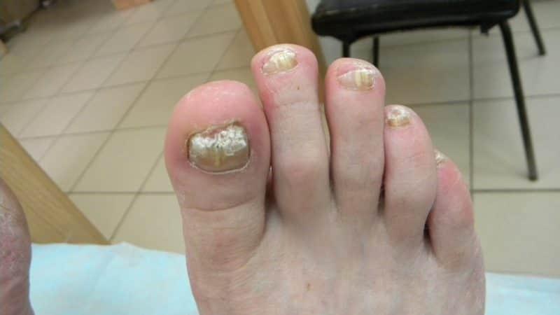 Как вылечить грибок ногтей за 10 дней в домашних условиях?