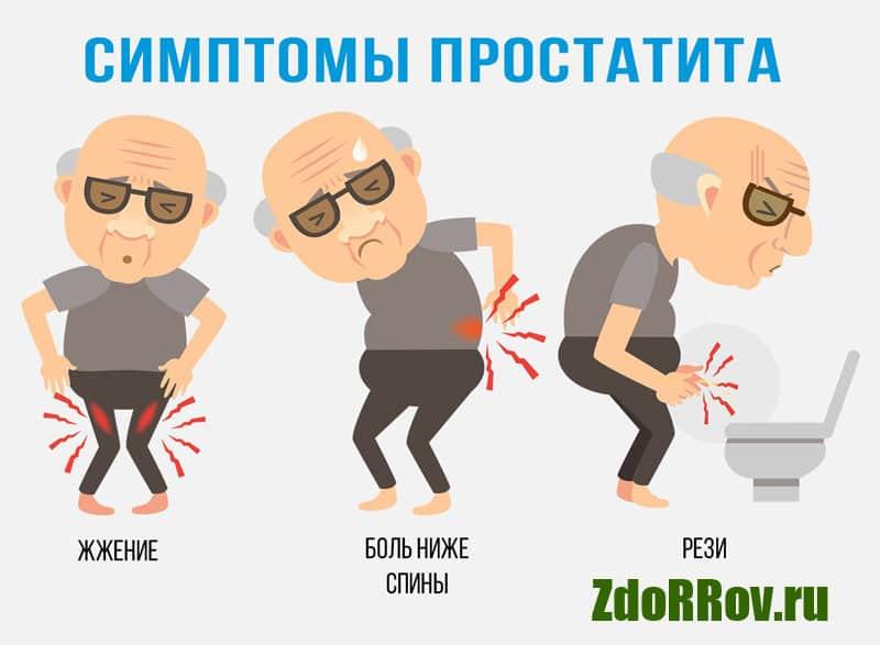 Основные симптомы простатита