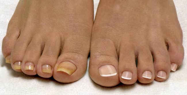 Как вылечить грибок ногтей за 10 дней