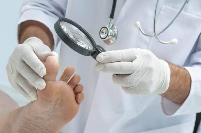 Врачи-дерматологи выделяют 3 стадии онихомикоза: начальная, средняя и тяжелая