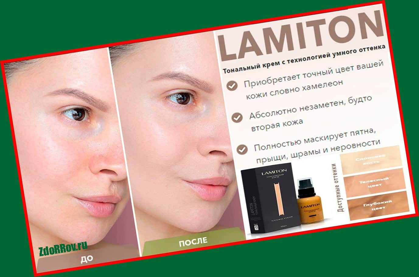Преимущества Ламитон