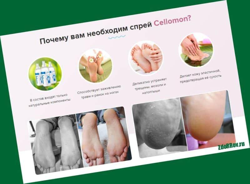 Cellomon — средство для борьбы с огрубевшей кожей